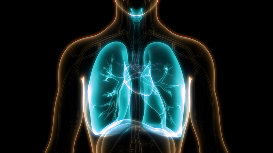 A graphic of a chest and lungs on a black background. The lungs are highlighted blue implying inflammation from COVID-19 infection
